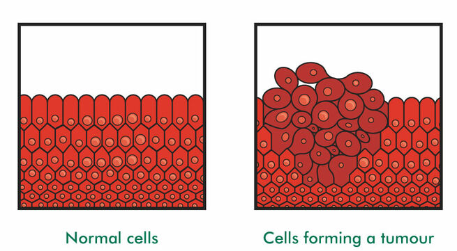 Diagram of cells forming a tumour